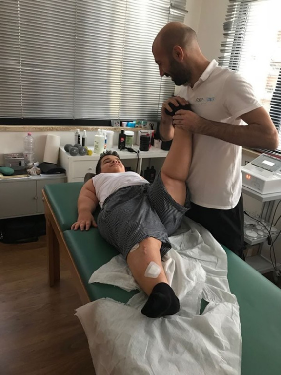 Fisioterapia-e-acondroplasia